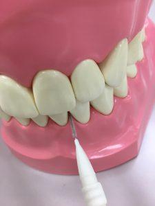 歯間ブラシによるブラッシング