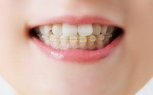 芸能人に人気の歯並び治療