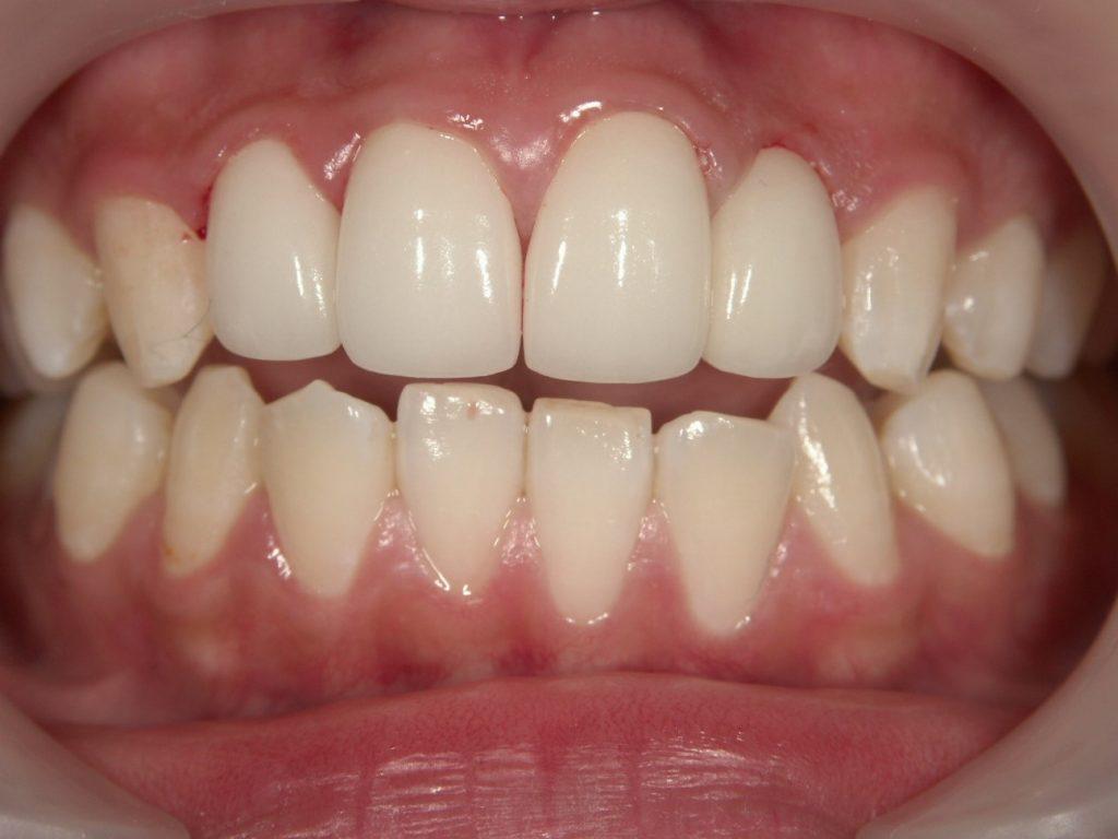 出っ歯のセラミック矯正後