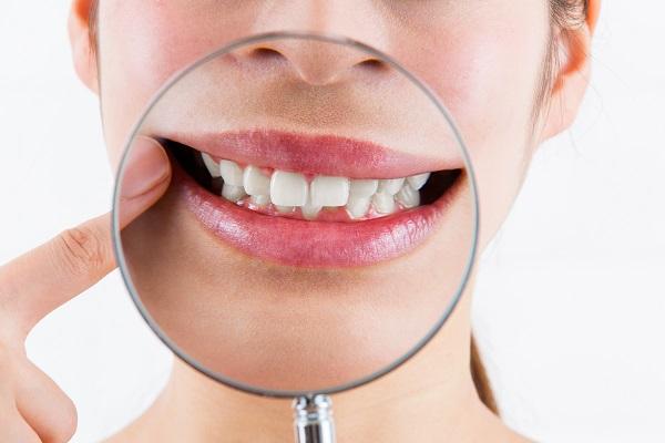 日本人に多い出っ歯の改善