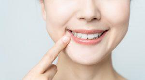 銀歯をホワイトニングで白く