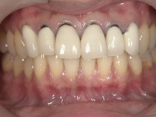 前歯6本のセラミック矯正前