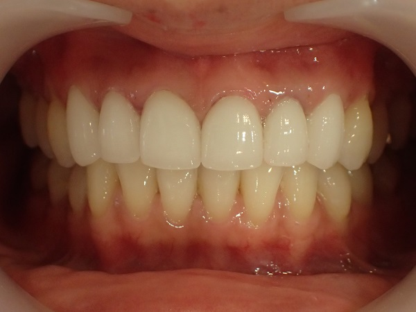 前歯6本のセラミック矯正後
