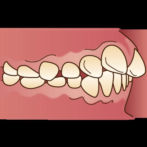 口ゴボとアデノイド肥大
