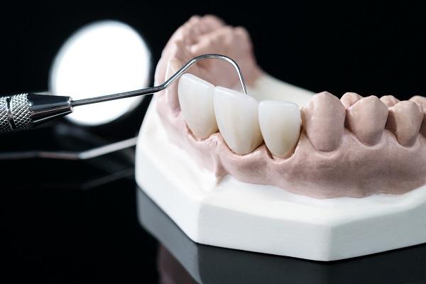 仮歯と土台