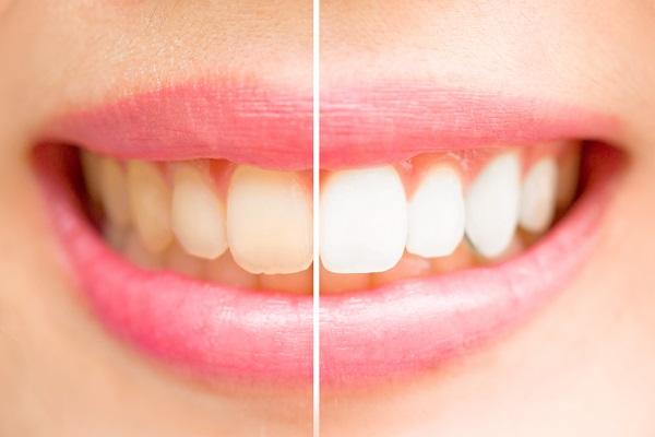 歯の白さをセラミック治療で再治療