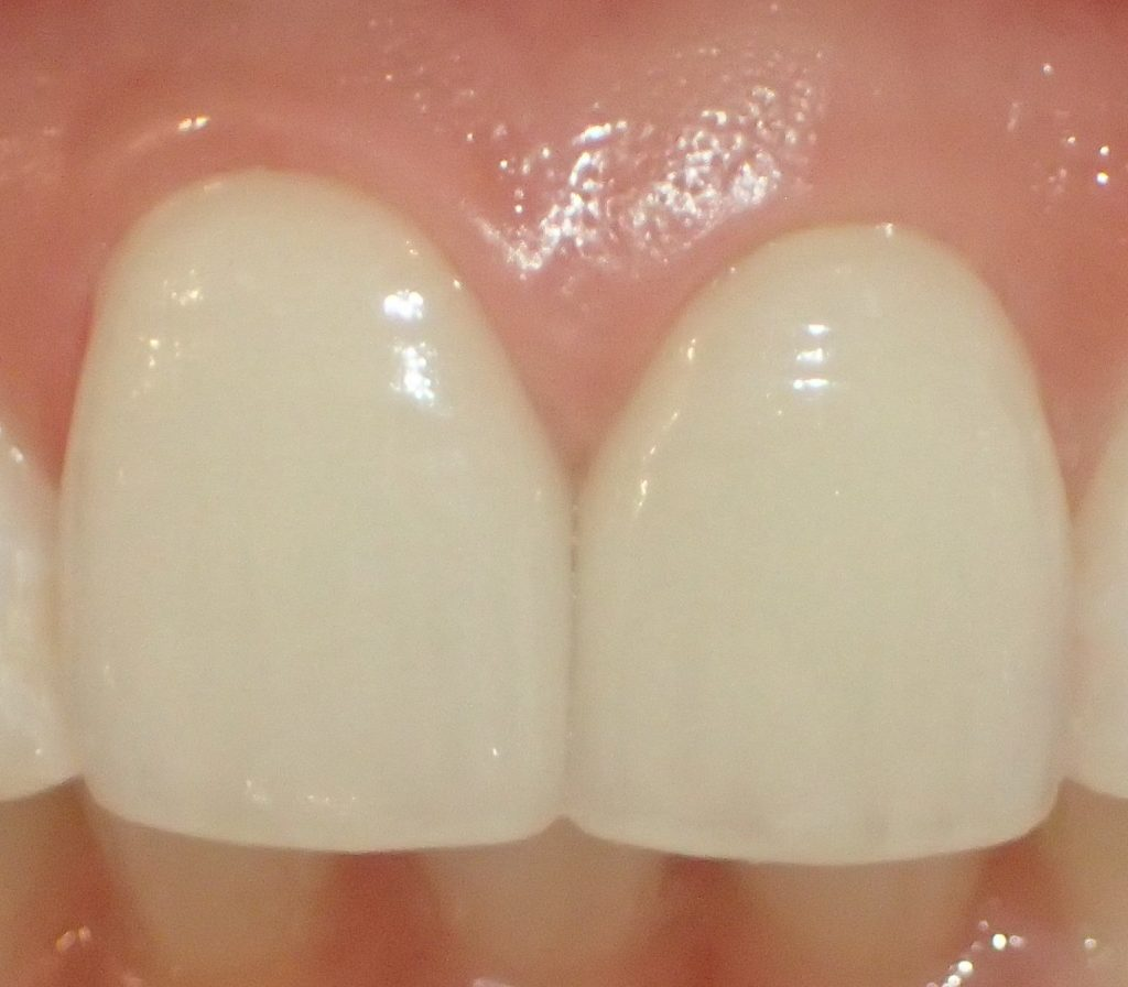 歯のグラデーションへのこだわり