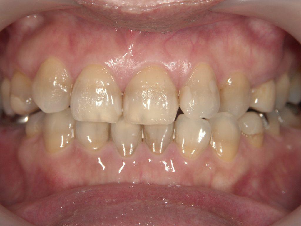 セラミック矯正前のテトラサイクリン歯