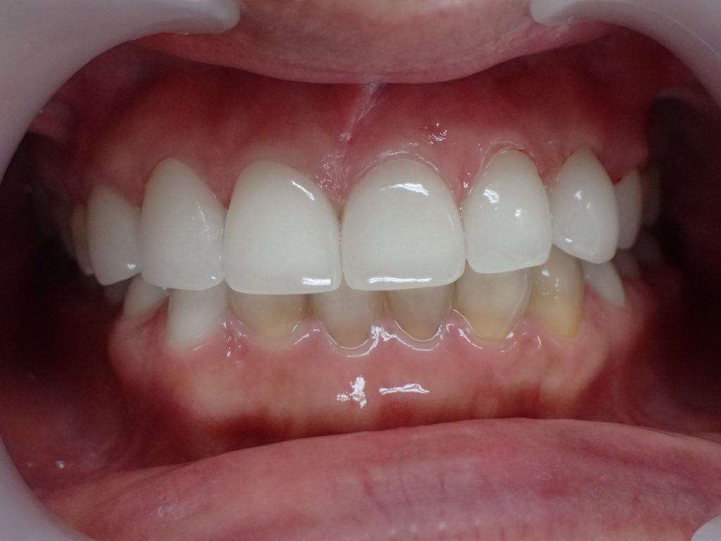 セラミック矯正後のテトラサイクリン歯