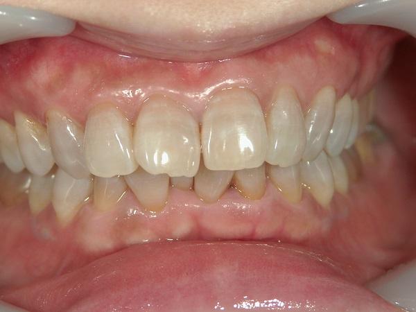 ホワイトニング後のテトラサイクリン歯