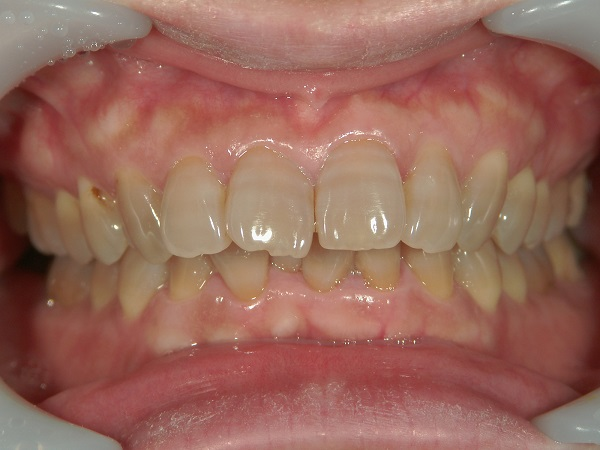 ホワイトニング前のテトラサイクリン歯