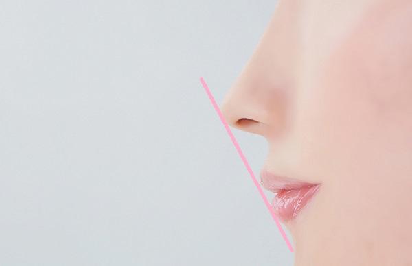 口ゴボ治療によって理想的なEラインに整える