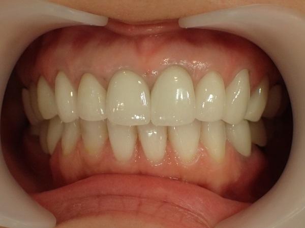差し歯の黒ずみ治療セラミック矯正後