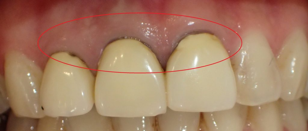金属が歯茎に溶け出すことによる歯茎の黒ずみ