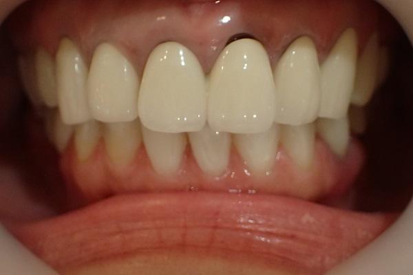 差し歯の黒ずみ治療セラミック矯正前