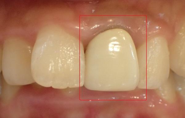 差し歯特有の厚みや変色